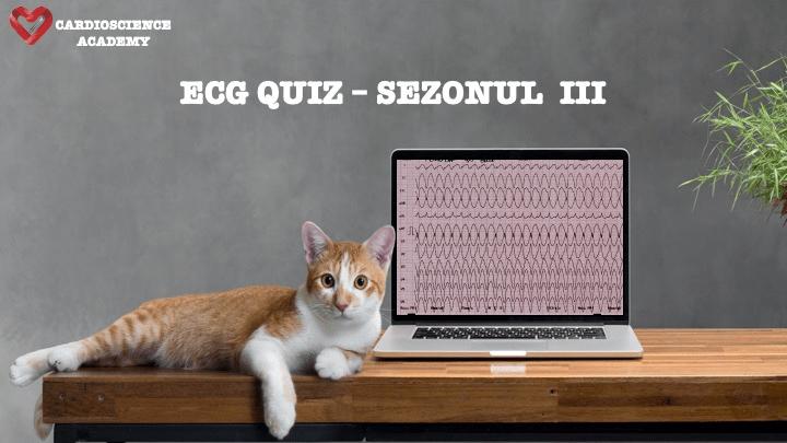 Sezonul 3 ECG Quiz Online Pret promotional